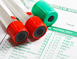 Hepatitis C: What you need to know